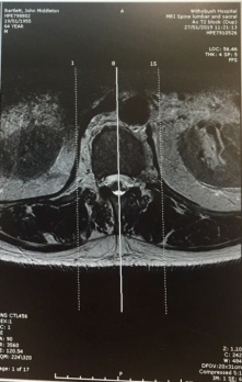 MRI 2